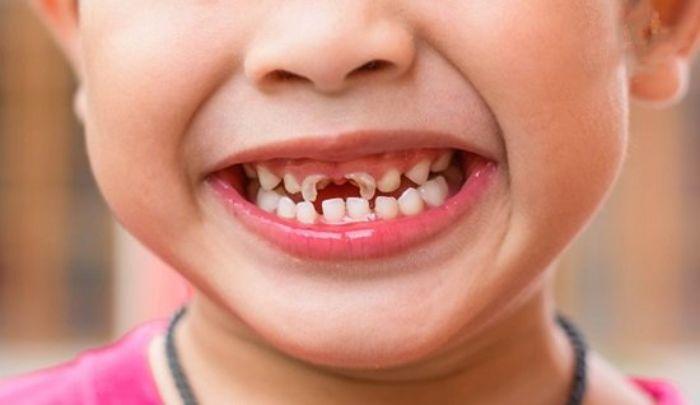 Mơ thấy răng sâu là điềm báo gì?